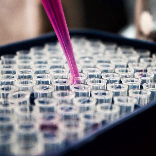 Epigenetik eine neue Wissenschaft, die uns viel Veränderungsspielraum einräumt wenn es um Veränderung geht.